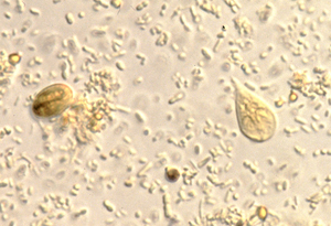 hogyan lehet megszabadulni a test parazitáitól egyedül diphyllobothriasis diéta